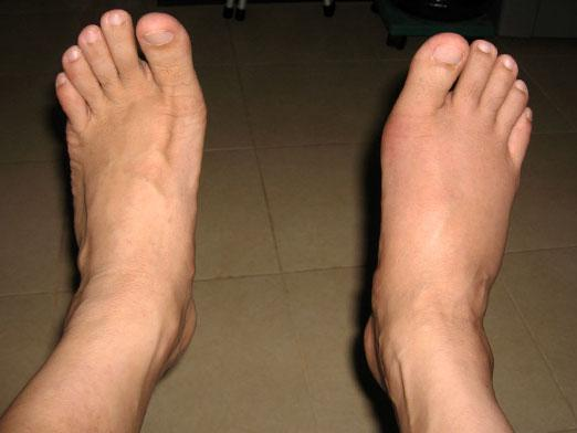 Diet for gout on the legs
