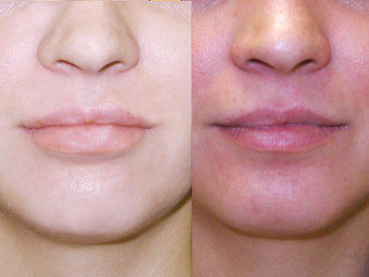 How to shrink lips?