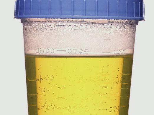 How to collect daily urine?