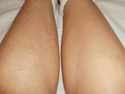 What is good hair removal?