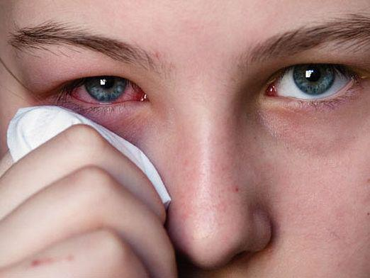 What causes conjunctivitis?