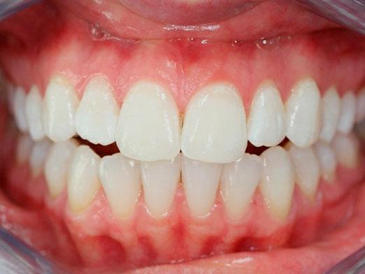 How many teeth does a person have?