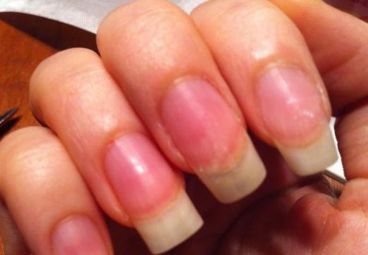 What to do if the nail is broken?