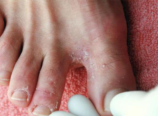How to cure a foot fungus?