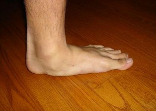 How to cure flat feet?