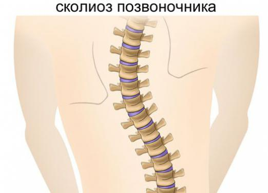 How to cure scoliosis?