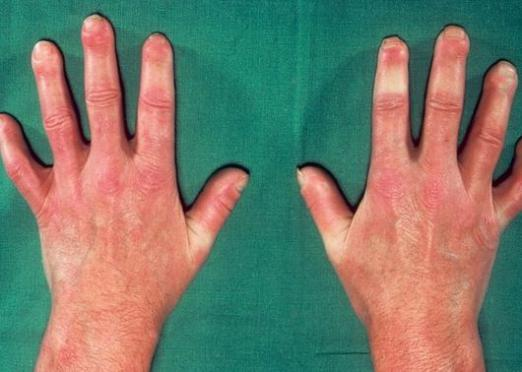 What is scleroderma?