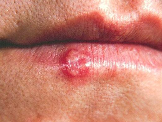 How to get rid of herpes?
