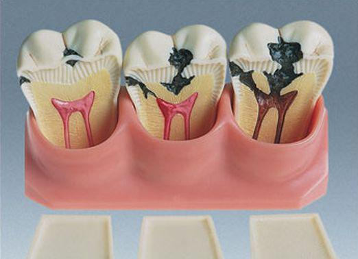 What is pulpitis?