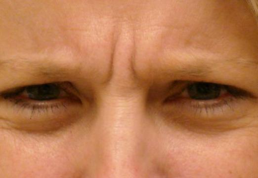 How to remove the wrinkle between the eyebrows?