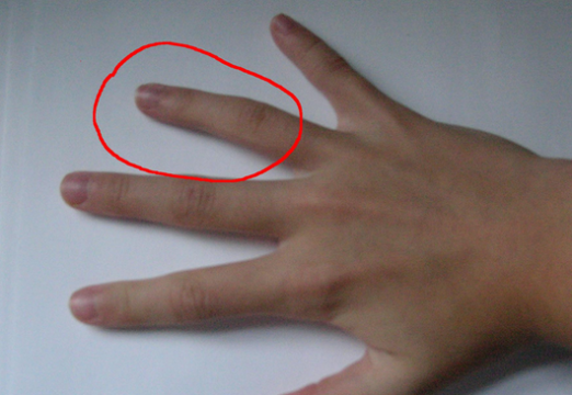 Why is the finger ringless?