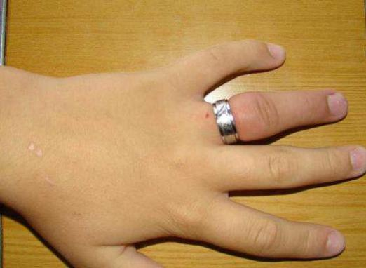 Swelling of the finger: how to remove the ring?
