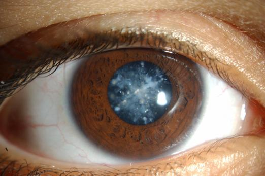 What is a cataract surgery?
