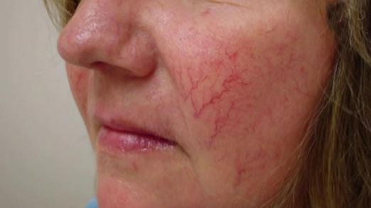 How to remove spider veins with a laser?