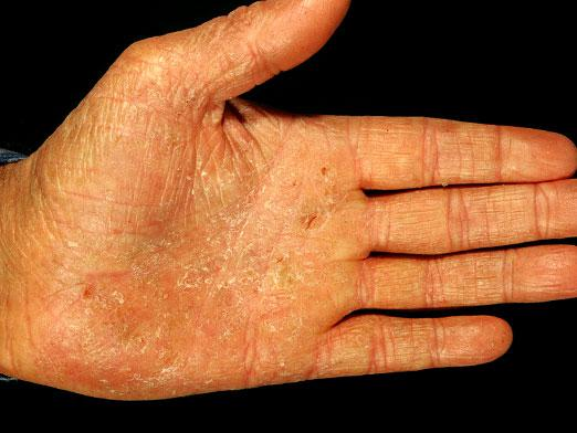 What is psoriasis?