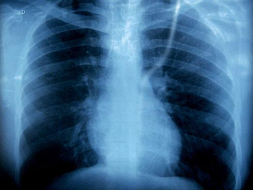 How often can x-rays be taken?