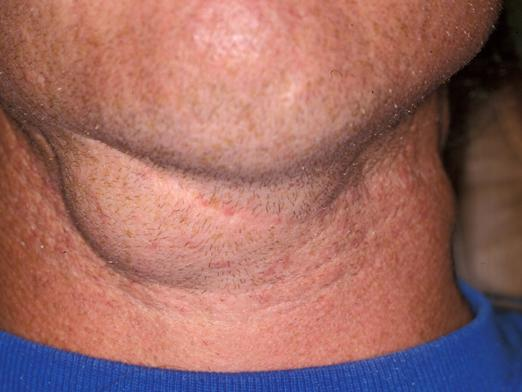 Why are the lymph nodes inflamed?